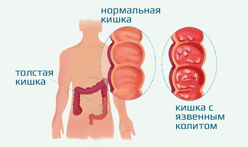 A krosztatitis ayurvédikus kezelése)